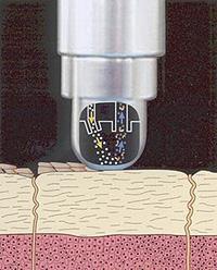 mikrodermabrazja - zabieg